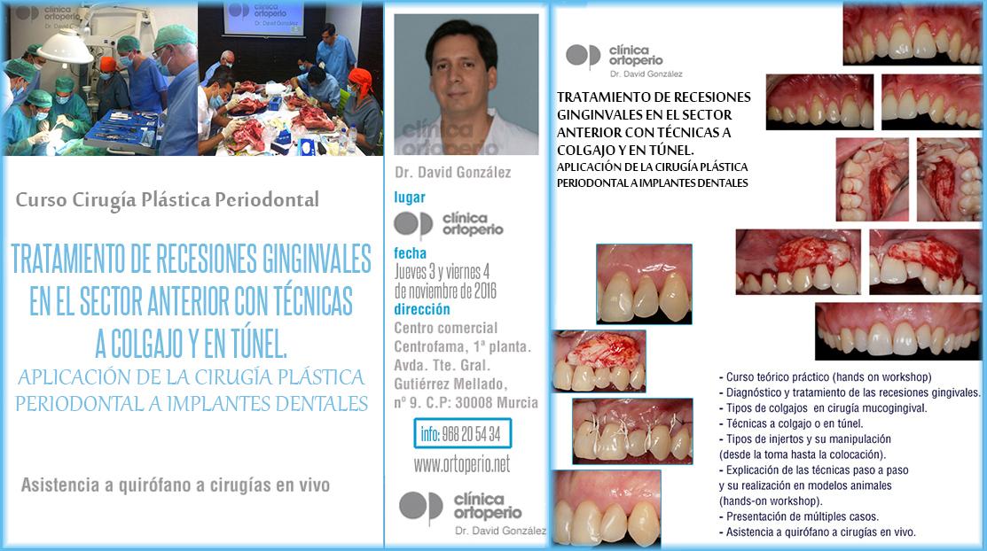 Curso de Cirugía Plástica Periodontal: Tratamiento de recesiones gingivales 1
