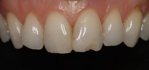 Restoration of a small fracture in the central incisor 1