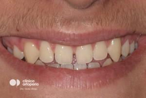 Multidisciplinary treatment: Orthodontic treatment and porcelain veneers. Class 3, diastema (gap between teeth). 1