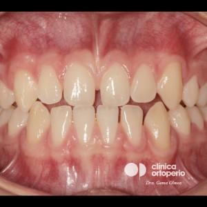 Tratamiento multidisciplinar: Ortodoncia y Carillas de Porcelana. Clase III, diastemas (espacios entre los dientes) 3