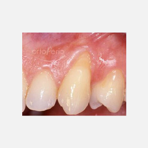 Gum loss affecting canine tooth 1