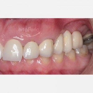Bone and gum reconstruction to obtain papillae with implants on molars 3