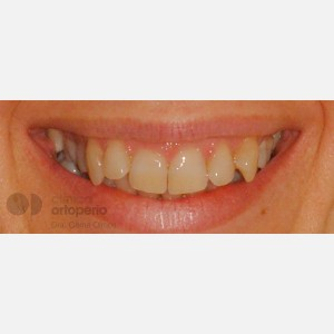 Lingual Orthodontics: Class II, extractions, micro-implants, implants 13