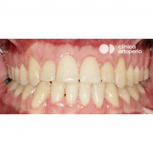 Orthodontic treatment. Class III, open bite, crossbite, overcrowding, receding gums. Treatment by gum graft, corticotomy and bone graft, and orthodontic treatment with skeletal anchorage 4
