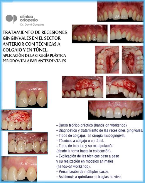 Curso de Cirugía Plástica Periodontal: Tratamiento de recesiones gingivales 2