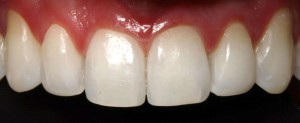 Incisors and upper canines restoration with composite veneers 2