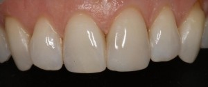 Restoration of a small fracture in the central incisor 2