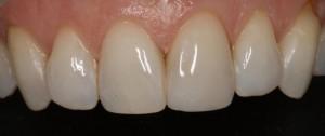 Restauración de pequeña fractura en el incisivo central 2