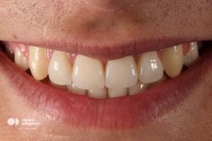 Multidisciplinary treatment: Orthodontic treatment and porcelain veneers. Class 3, diastema (gap between teeth). 2