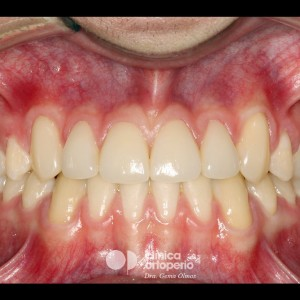 Multidisciplinary treatment: Orthodontic treatment and porcelain veneers. Class 3, diastema (gap between teeth). 4