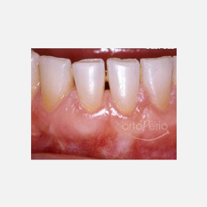 Gum loss affecting lower incisors 2