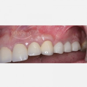 Bone and gum reconstruction to obtain papillae with implants on molars 2