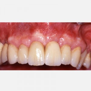 Patient with advanced periodontitis: bone regeneration and implants 2