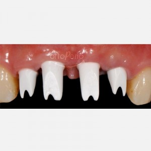 Bone and gum regeneration: Zirconium abutments and zirconium-porcelain crowns 4