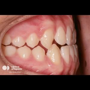 Multidisciplinary treatment: Orthodontic treatment and porcelain veneers. Class 3, diastema (gap between teeth). 5