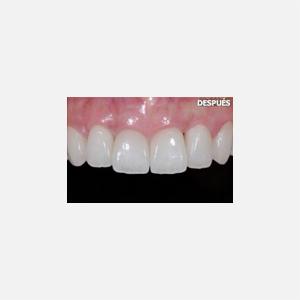Periodontitis agresiva 5