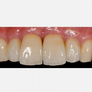 Bone and gum regeneration: Zirconium abutments and zirconium-porcelain crowns 5