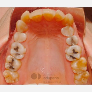 Lingual Orthodontics: Class II, extractions, micro-implants, implants 5