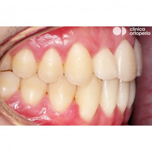 Orthodontic treatment. Class III, open bite, crossbite, overcrowding, receding gums. Treatment by gum graft, corticotomy and bone graft, and orthodontic treatment with skeletal anchorage 6