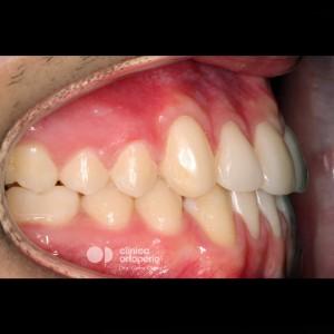 Multidisciplinary treatment: Orthodontic treatment and porcelain veneers. Class 3, diastema (gap between teeth). 6
