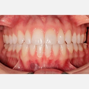 Lingual Orthodontics: Dental alignment and levelling through expansion to fill buccal corridors 6