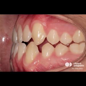 Tratamiento multidisciplinar: Ortodoncia y Carillas de Porcelana. Clase III, diastemas (espacios entre los dientes) 7