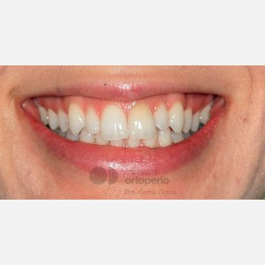 Lingual Orthodontics: Dental alignment and levelling through expansion to fill buccal corridors 7