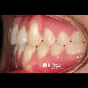 Multidisciplinary treatment: Orthodontic treatment and porcelain veneers. Class 3, diastema (gap between teeth). 8