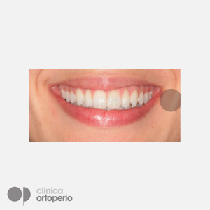 Lingual Orthodontics: Dental alignment and levelling through expansion to fill buccal corridors 8