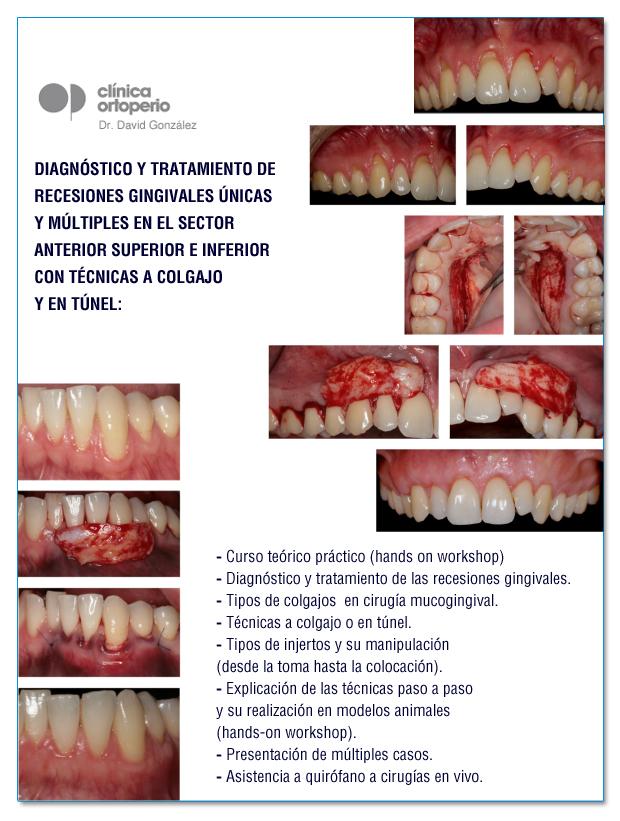 "Curso celebrado ""Cirugía plástica periodontal"" 5"