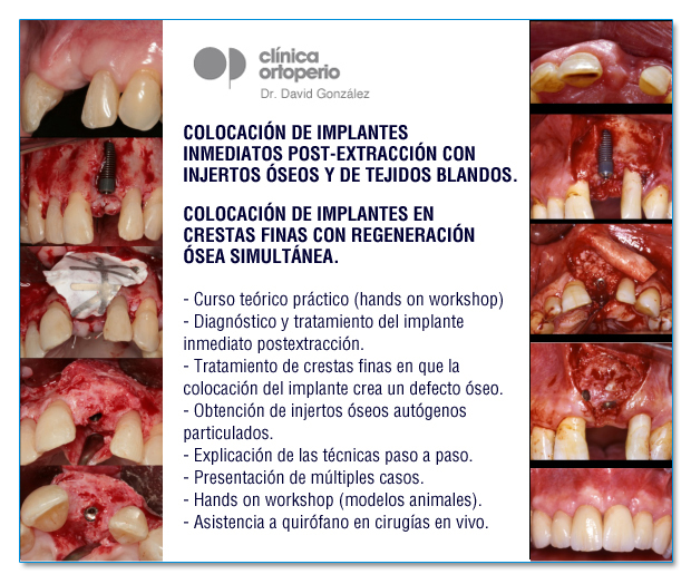 Regeneración ósea avanzada en Implantología 3