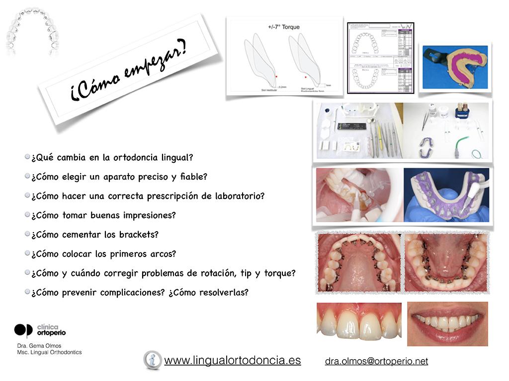 Curso de Ortodoncia Lingual 1