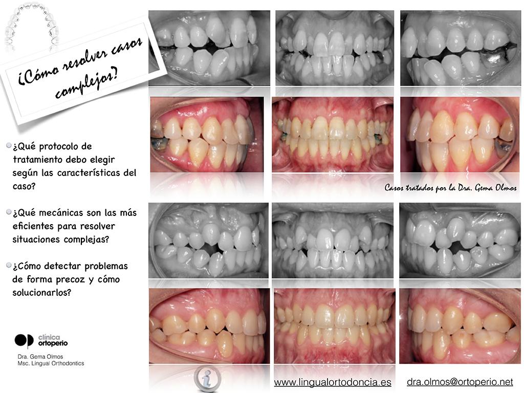 Curso de Ortodoncia Lingual 2