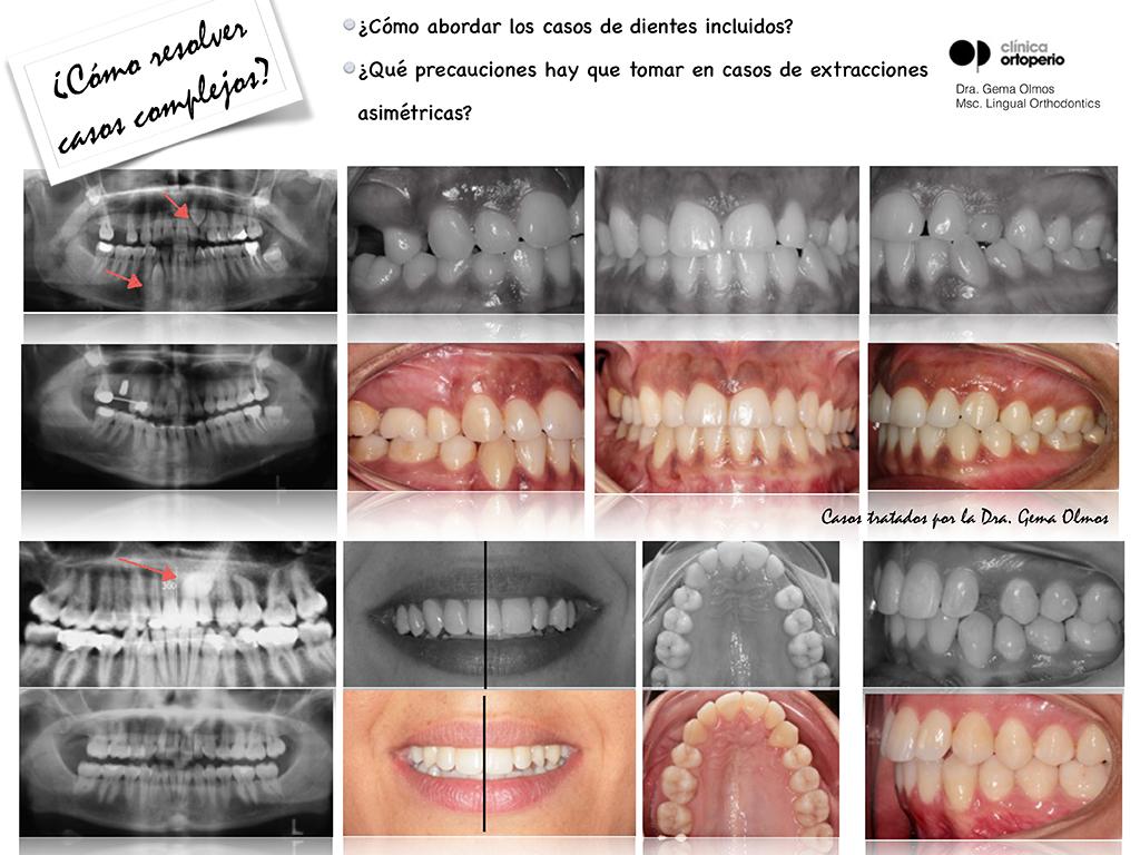 Curso de Ortodoncia Lingual 3