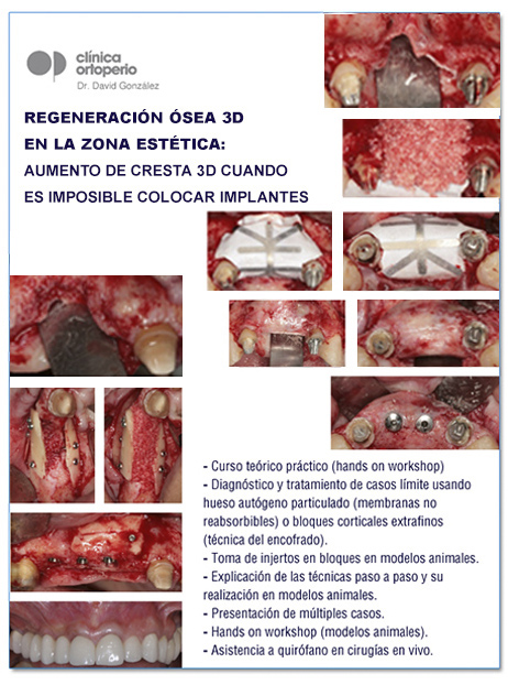 "Curso celebrado ""Cirugía plástica periodontal"" 2"