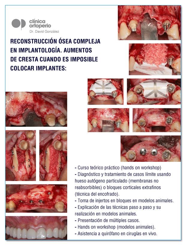 """Curso teórico práctico """"Reconstrucción Ósea Compleja en Implantología"""" 2"""