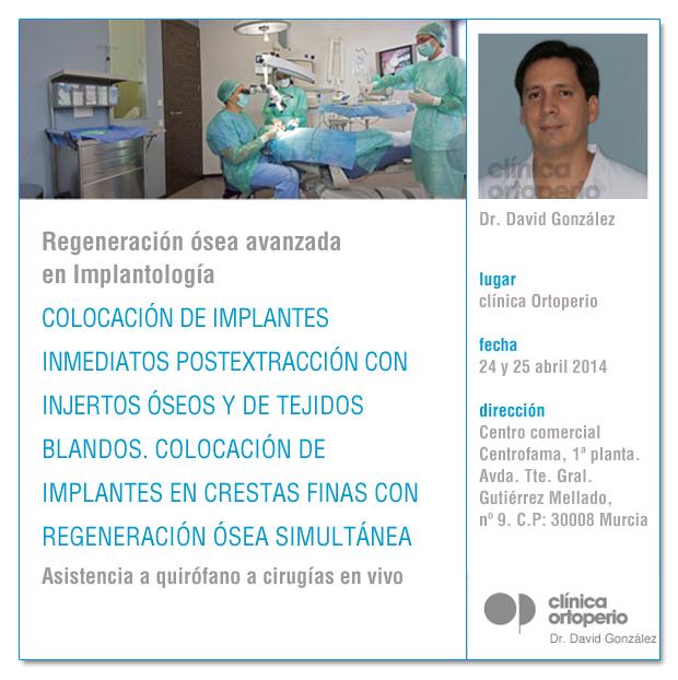 Regeneración ósea avanzada en Implantología 1