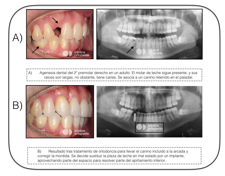 Agenesia Dental 2