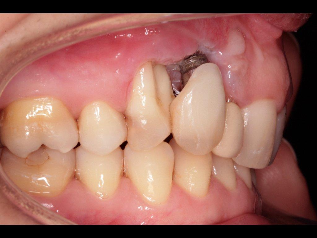 Implantes dentales de calidad: ¿De qué depende la calidad de los implantes dentales? 1