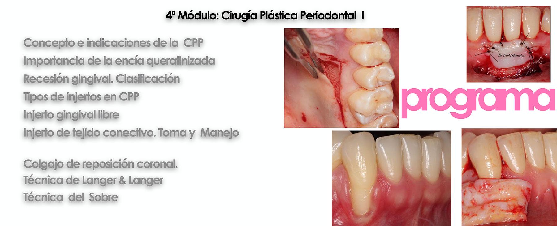 Curso cirugía periodontal e implantológica 19