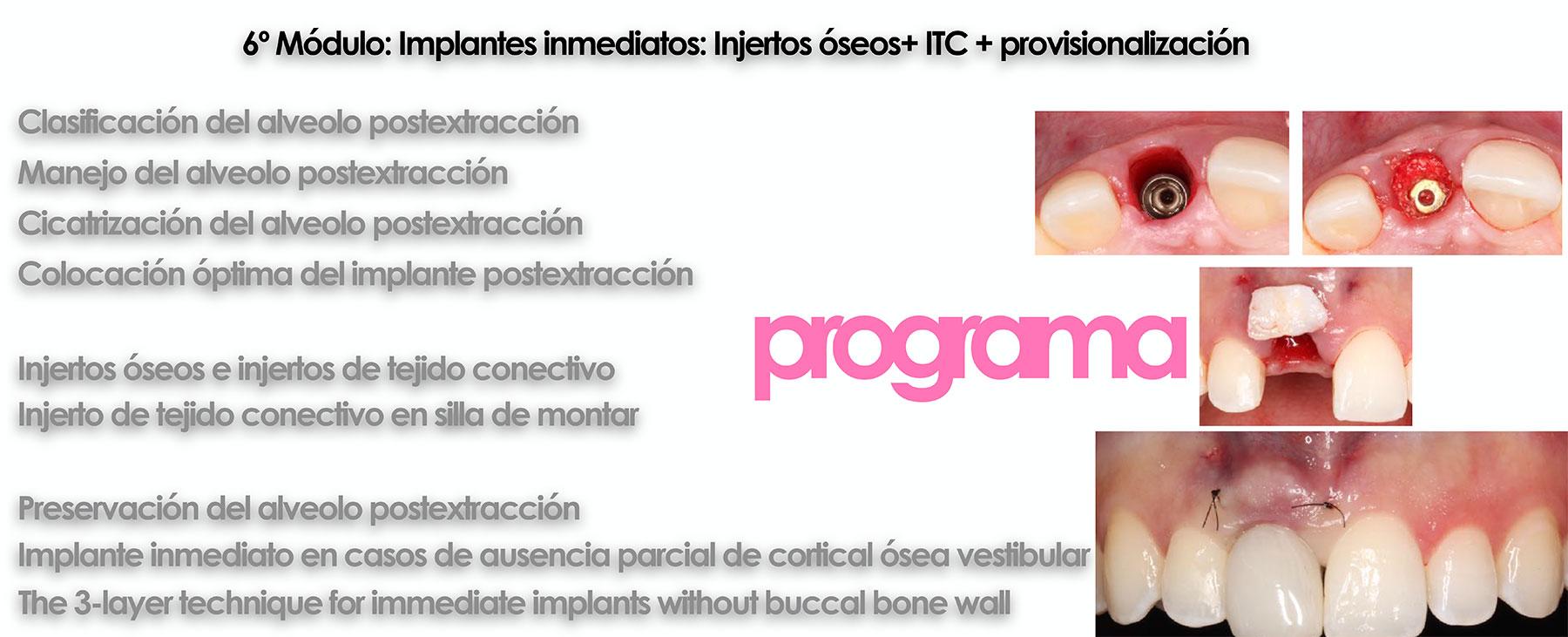 Curso cirugía periodontal e implantológica 21