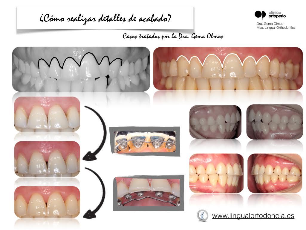 4ª Edición Curso Intensivo de Ortodoncia Lingual 10