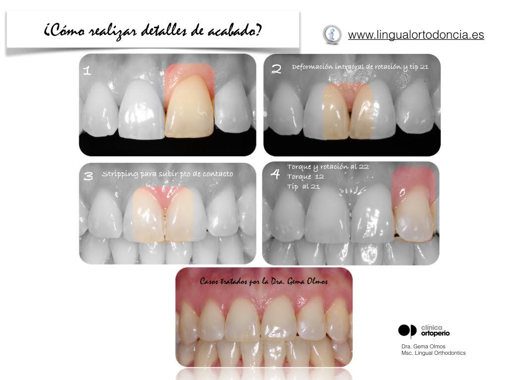 4ª Edición Curso Intensivo de Ortodoncia Lingual 11