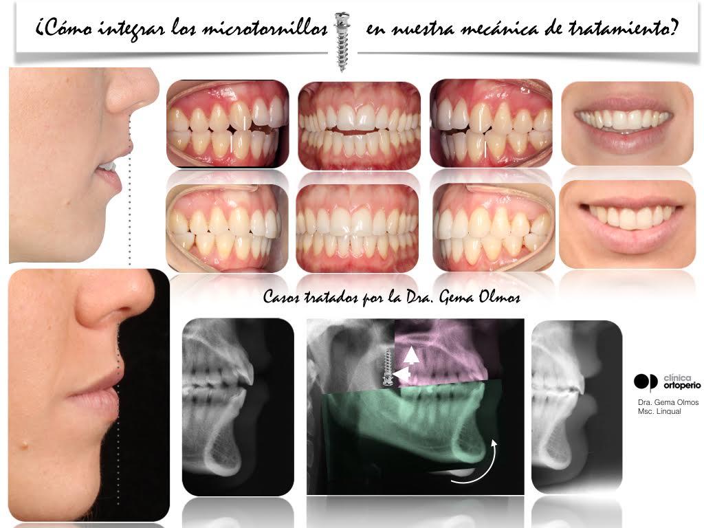 4ª Edición Curso Intensivo de Ortodoncia Lingual 12
