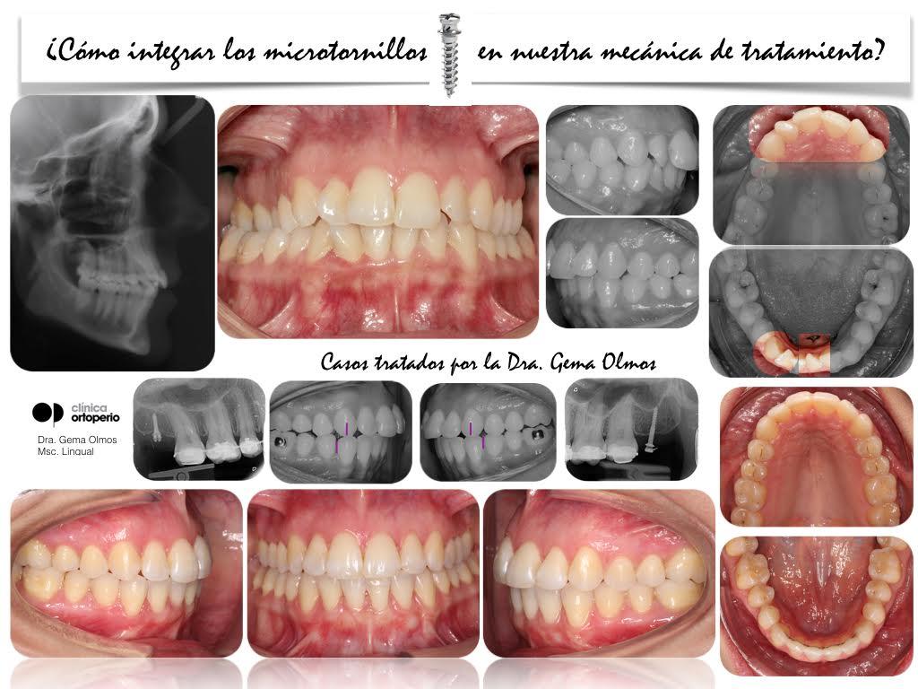 4ª Edición Curso Intensivo de Ortodoncia Lingual 13