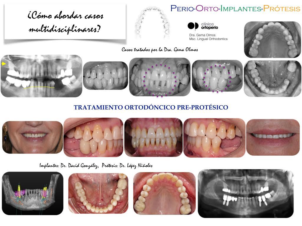 4ª Edición Curso Intensivo de Ortodoncia Lingual 2