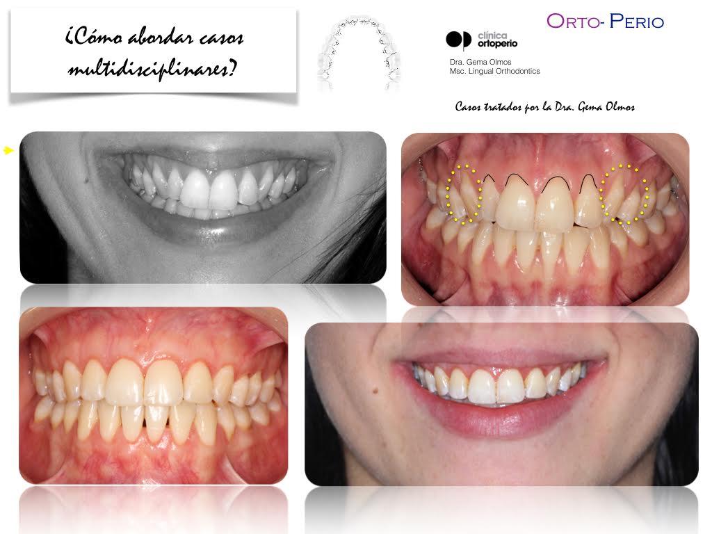 4ª Edición Curso Intensivo de Ortodoncia Lingual 3