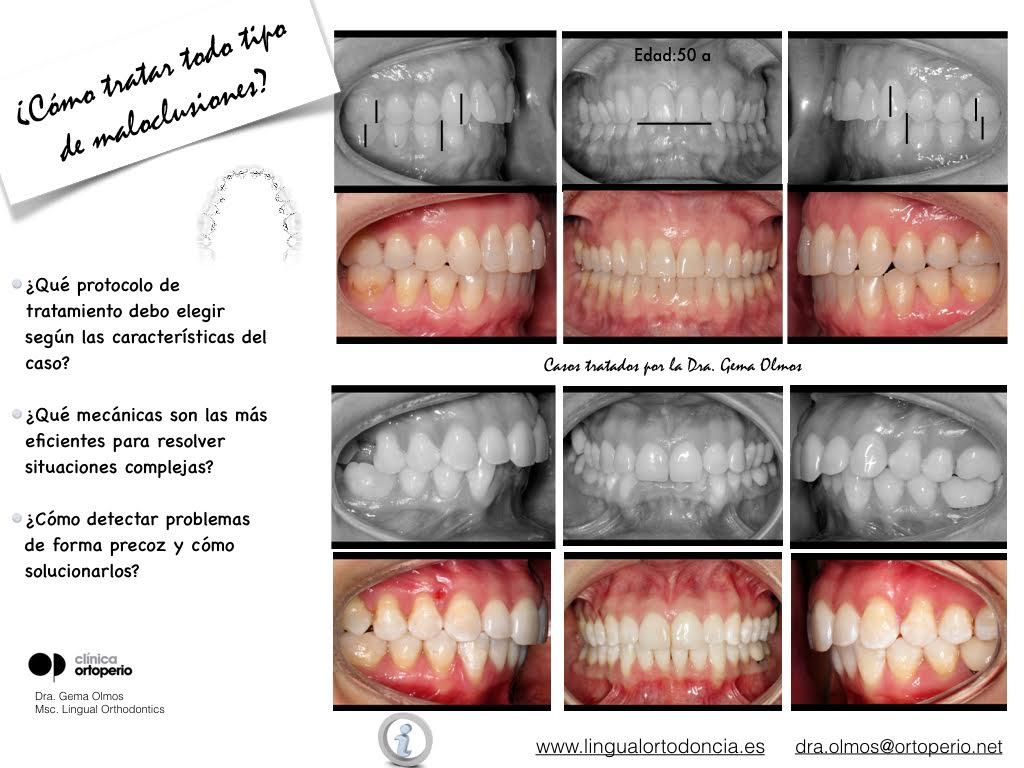 4ª Edición Curso Intensivo de Ortodoncia Lingual 6