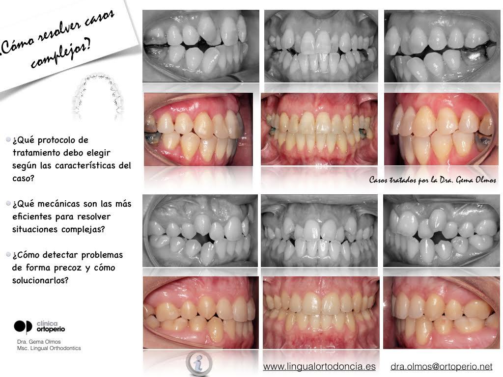 4ª Edición Curso Intensivo de Ortodoncia Lingual 7
