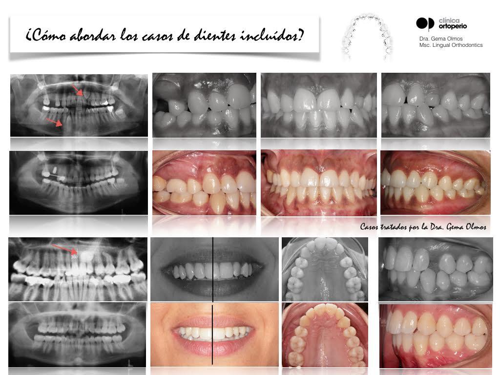 4ª Edición Curso Intensivo de Ortodoncia Lingual 8